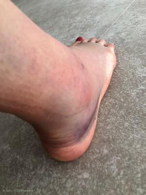 Rieders rechter Fuß drei Tage nach dem Sturz © privat